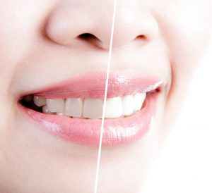 Teeth Bleaching in Fancy Gap