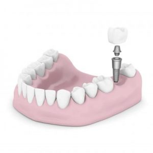 Fancy Gap CEREC